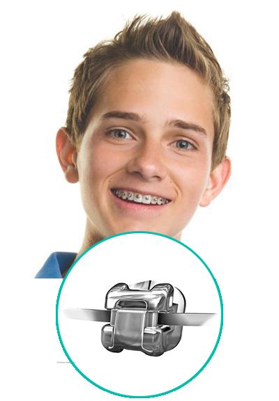 Rögzített, fém fogszabályozó készülék fiún